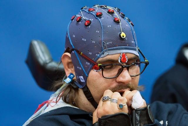 Prothetik_Brain-Tweakers_TUV_Rheinland_ZoomImagelarge.jpg